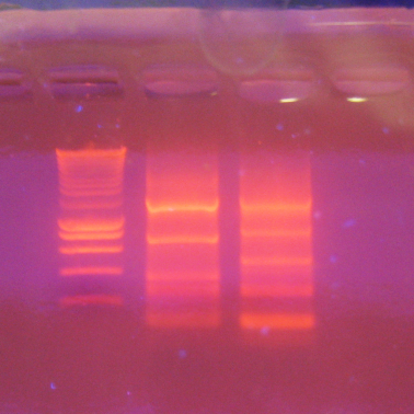 DNA 'gets stuck' in hydrogel in promising discovery for gene therapy