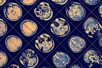 A new perspective on cavitation and traumatic brain injury