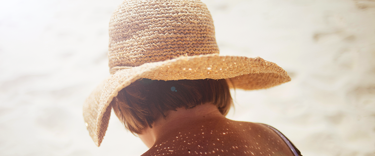 Sunburned woman wearing a droopy sunhat